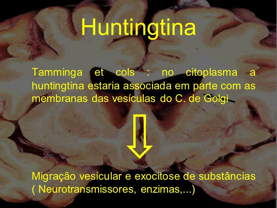Huntingtina Tamminga et cols : no citoplasma a huntingtina estaria associada em parte com as membranas das vesículas do C. de Golgi.