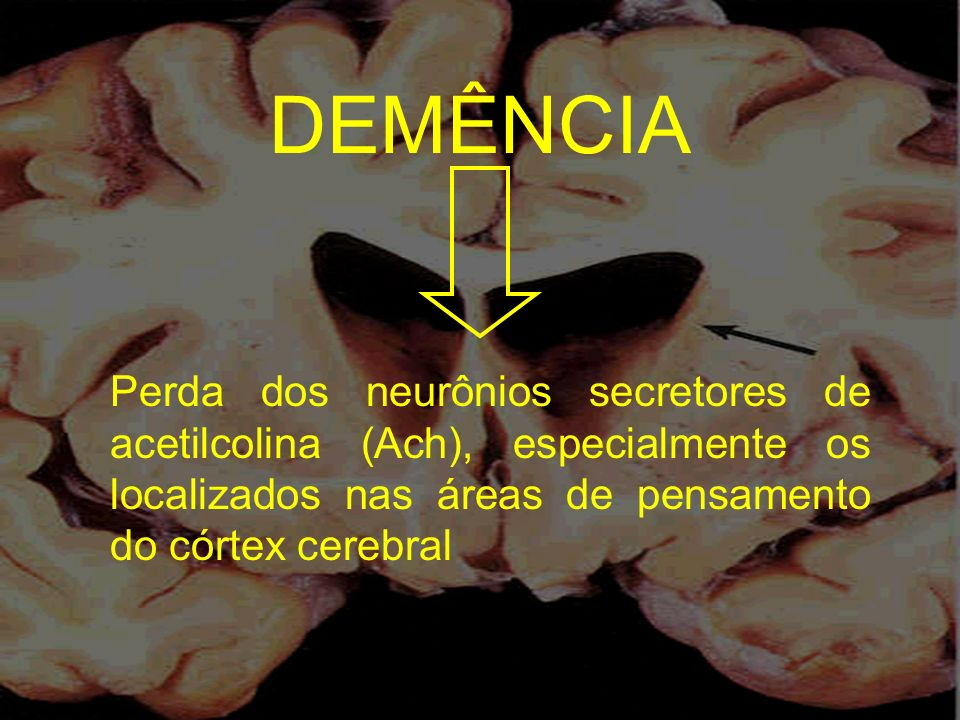 DEMÊNCIA Perda dos neurônios secretores de acetilcolina (Ach), especialmente os localizados nas áreas de pensamento do córtex cerebral.