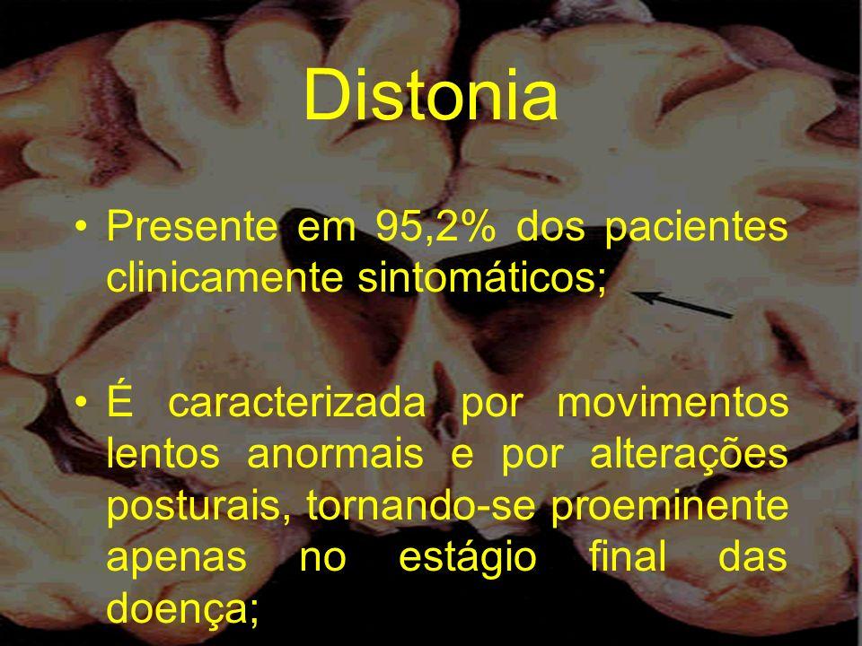 Distonia Presente em 95,2% dos pacientes clinicamente sintomáticos;