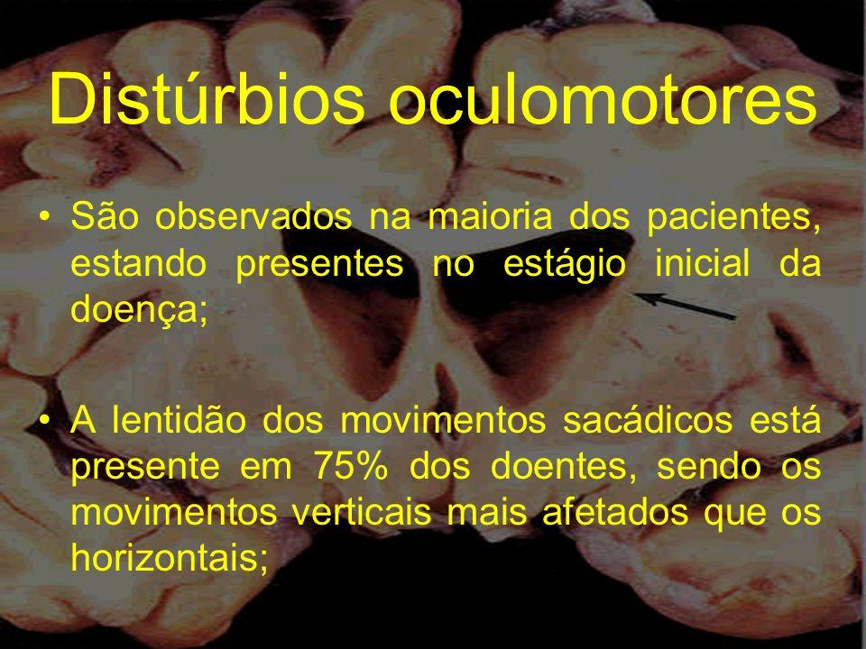 Distúrbios oculomotores