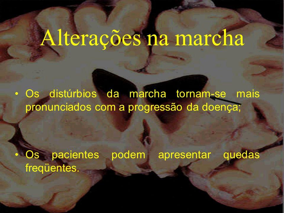 Alterações na marcha Os distúrbios da marcha tornam-se mais pronunciados com a progressão da doença;