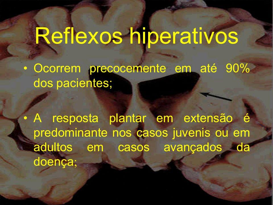 Reflexos hiperativos Ocorrem precocemente em até 90% dos pacientes;