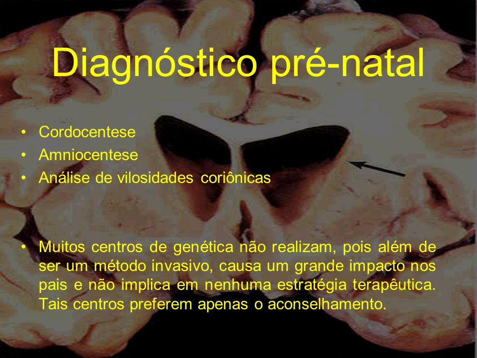 Diagnóstico pré-natal