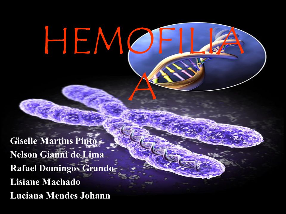 HEMOFILIA A Giselle Martins Pinto Nelson Gianni de Lima