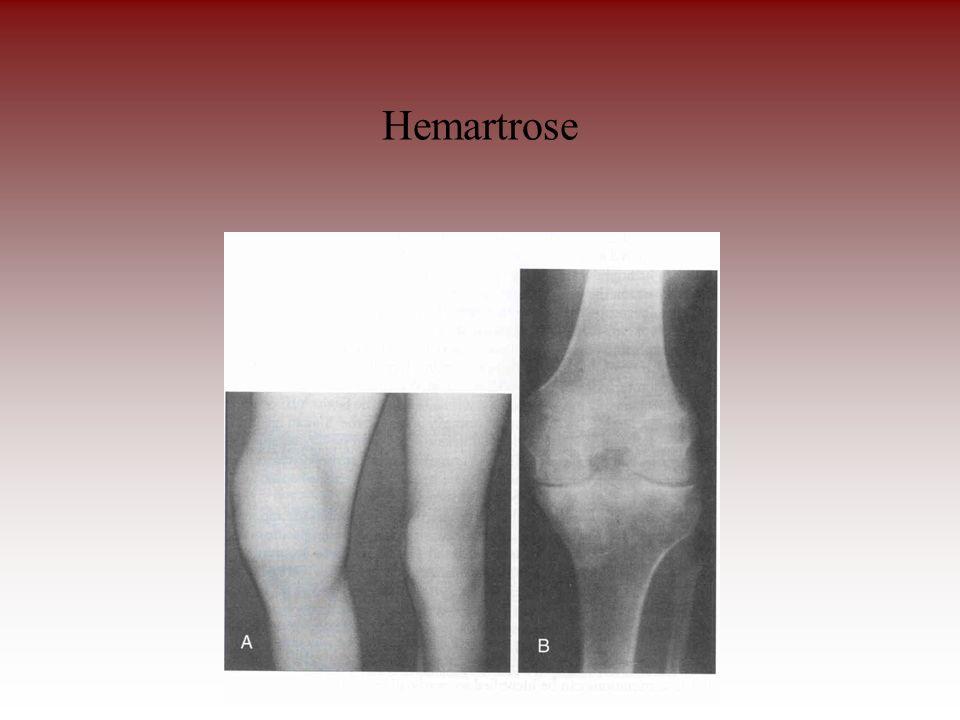 Hemartrose