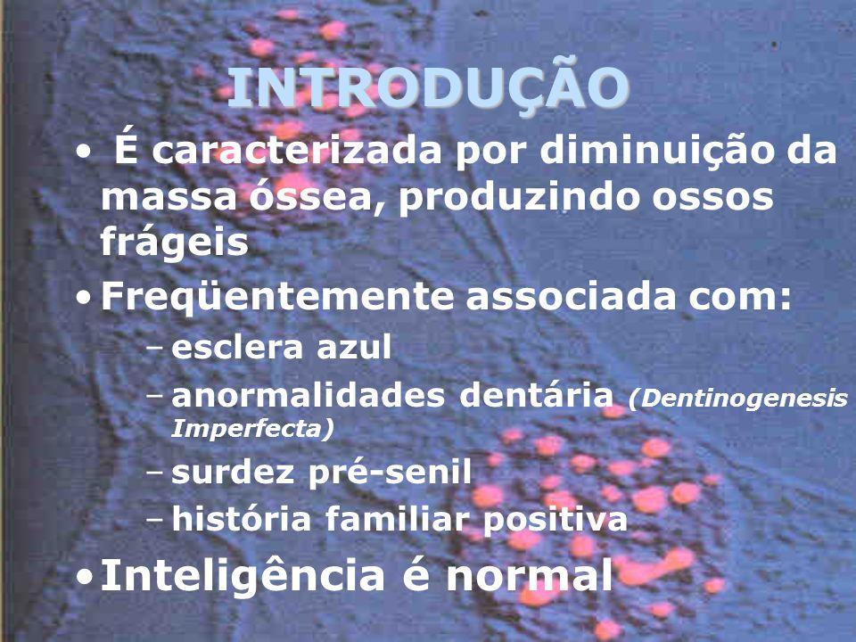 INTRODUÇÃO Inteligência é normal