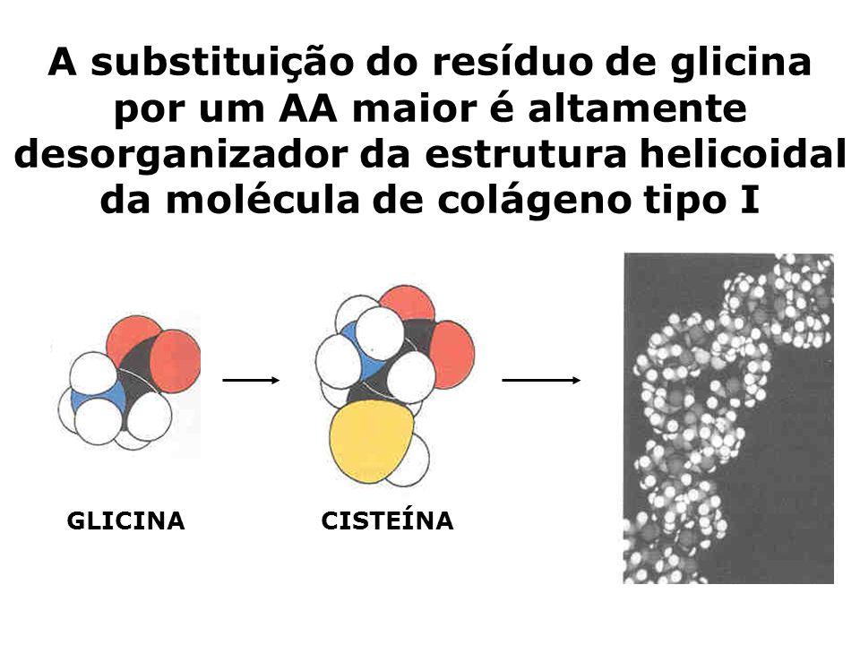 A substituição do resíduo de glicina por um AA maior é altamente desorganizador da estrutura helicoidal da molécula de colágeno tipo I