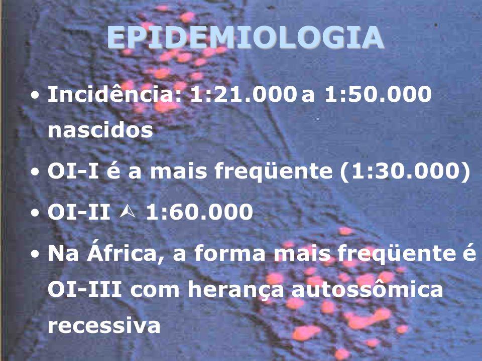 EPIDEMIOLOGIA Incidência: 1:21.000 a 1:50.000 nascidos