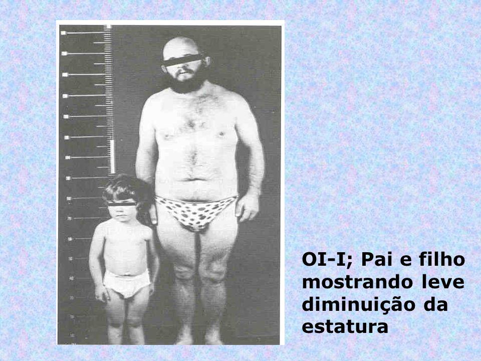 OI-I; Pai e filho mostrando leve diminuição da estatura