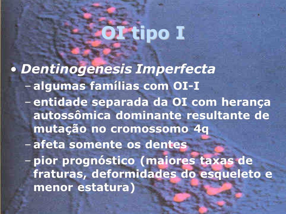 OI tipo I Dentinogenesis Imperfecta algumas famílias com OI-I