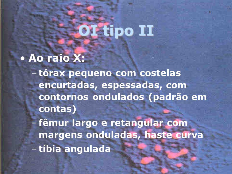 OI tipo II Ao raio X: tórax pequeno com costelas encurtadas, espessadas, com contornos ondulados (padrão em contas)