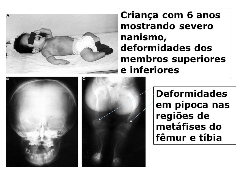 Criança com 6 anos mostrando severo nanismo, deformidades dos membros superiores e inferiores
