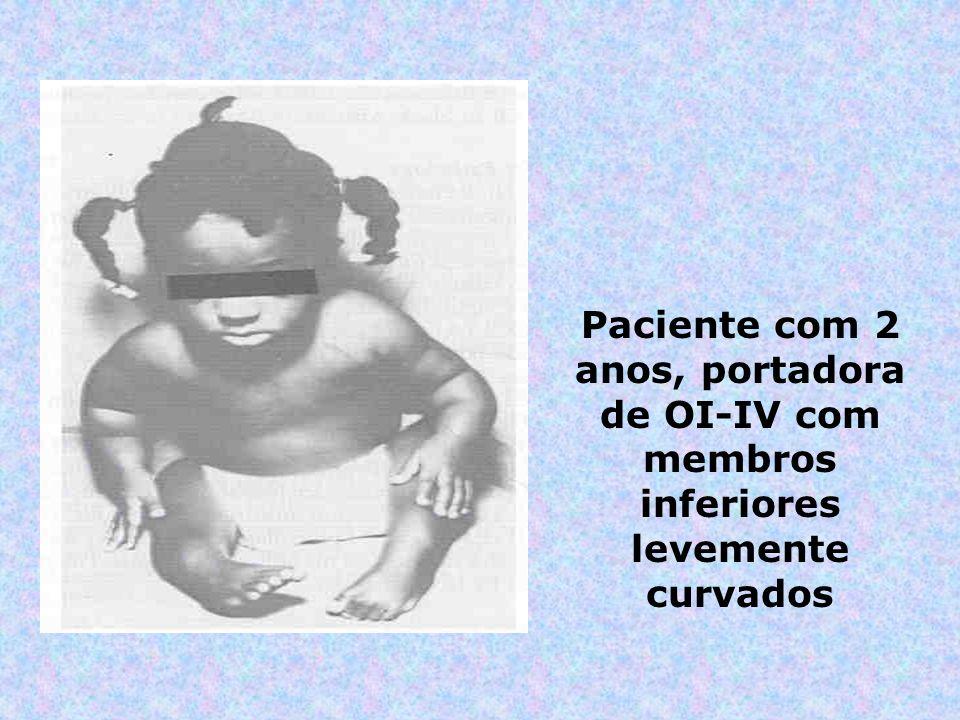 Paciente com 2 anos, portadora de OI-IV com membros inferiores levemente curvados