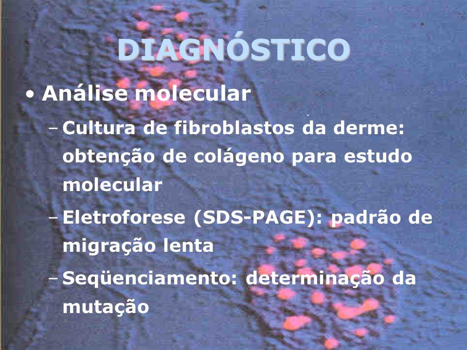 DIAGNÓSTICO Análise molecular