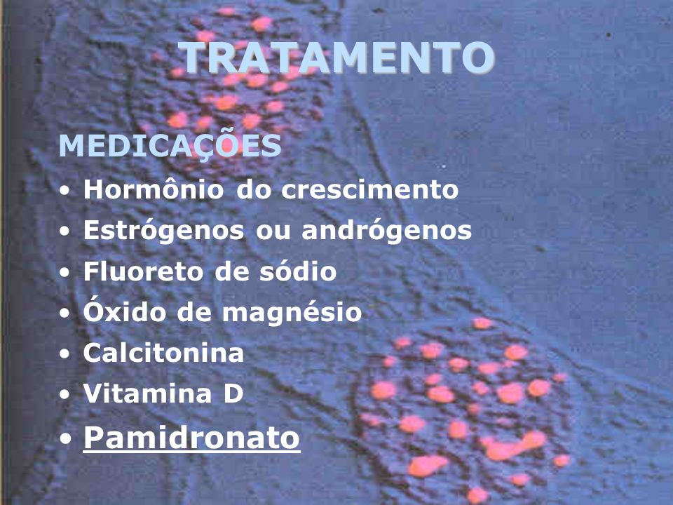 TRATAMENTO MEDICAÇÕES Pamidronato Hormônio do crescimento