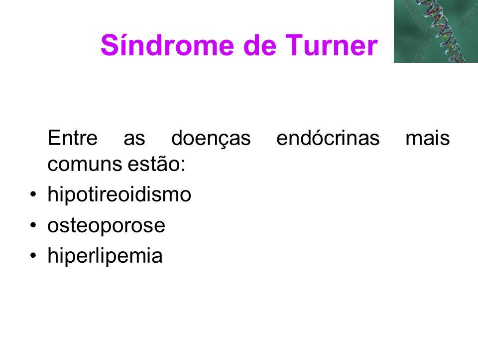 Síndrome de Turner Entre as doenças endócrinas mais comuns estão: