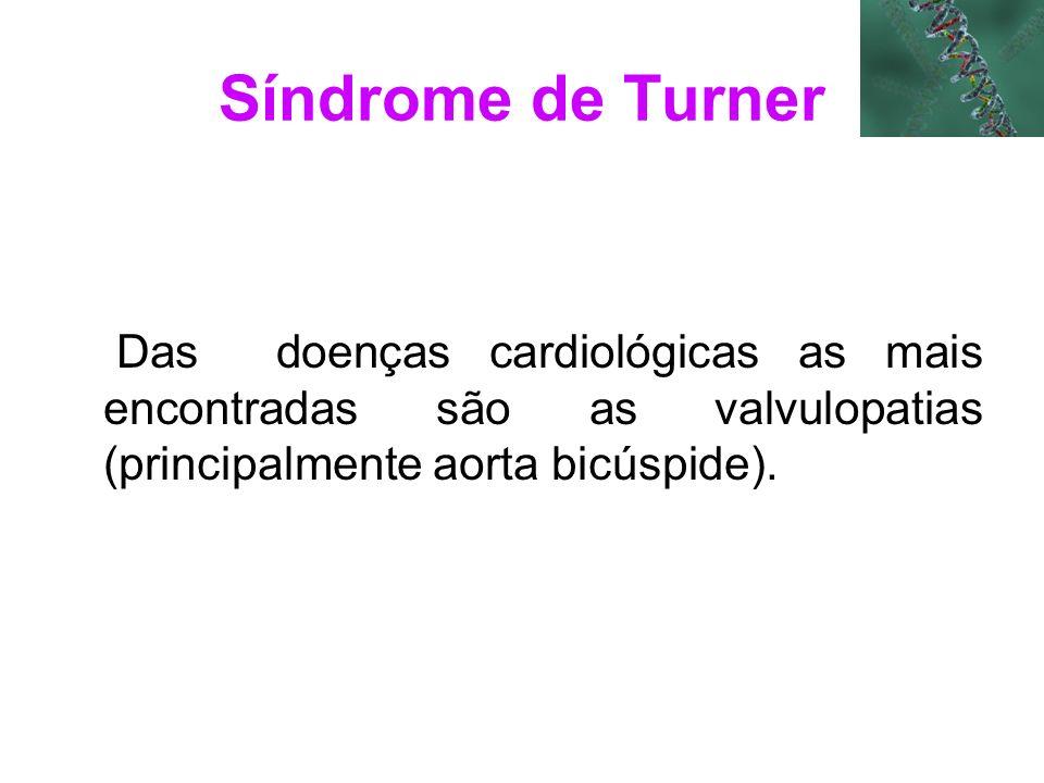 Síndrome de Turner Das doenças cardiológicas as mais encontradas são as valvulopatias (principalmente aorta bicúspide).
