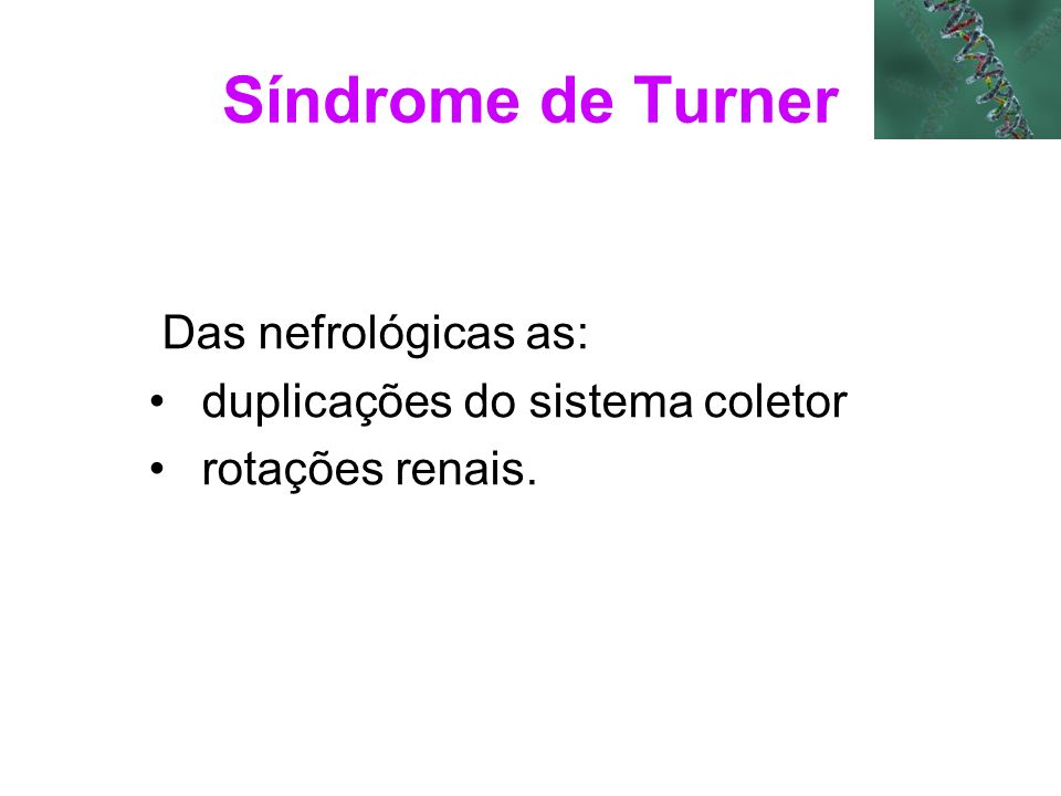 Síndrome de Turner Das nefrológicas as: duplicações do sistema coletor