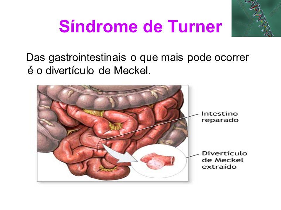 Síndrome de Turner Das gastrointestinais o que mais pode ocorrer é o divertículo de Meckel.