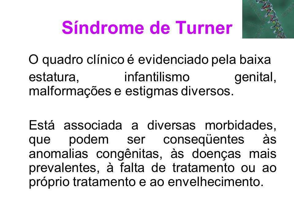 Síndrome de Turner O quadro clínico é evidenciado pela baixa