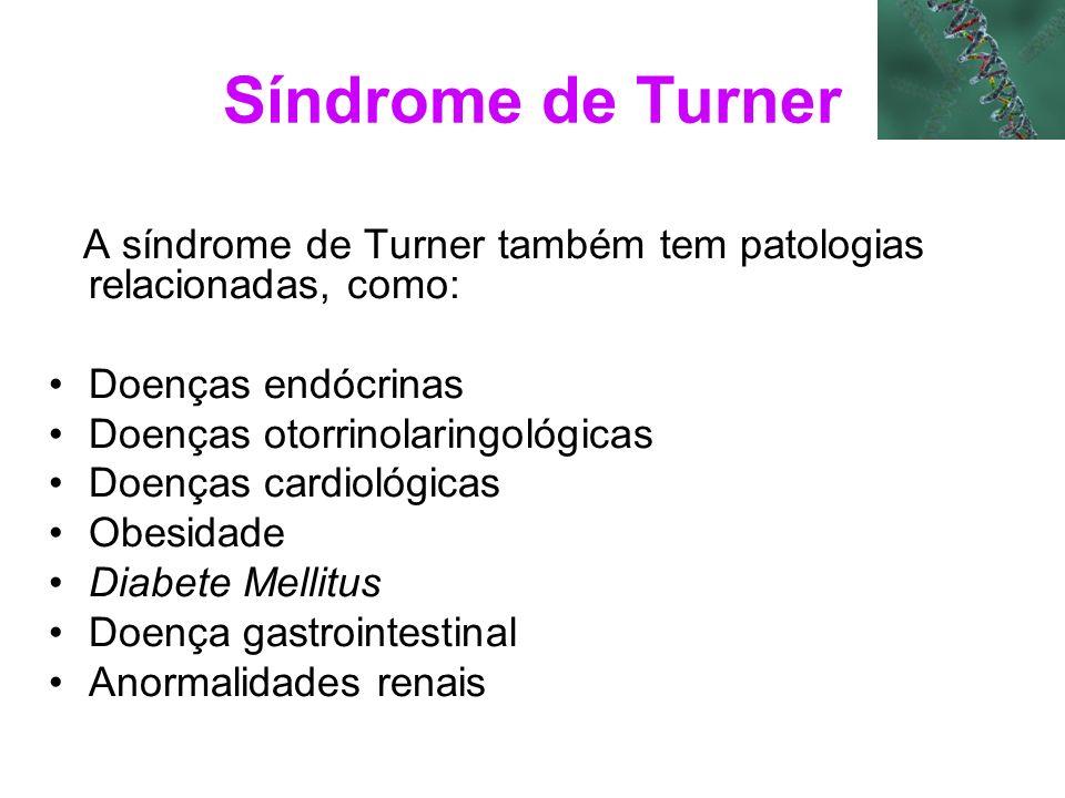 Síndrome de Turner A síndrome de Turner também tem patologias relacionadas, como: Doenças endócrinas.