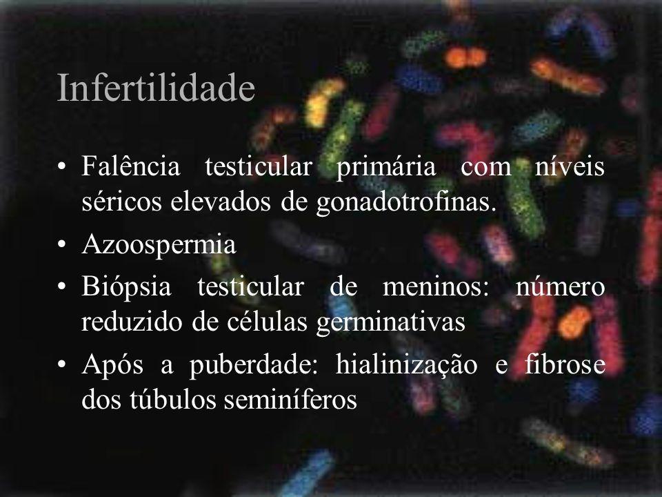 Infertilidade Falência testicular primária com níveis séricos elevados de gonadotrofinas. Azoospermia.