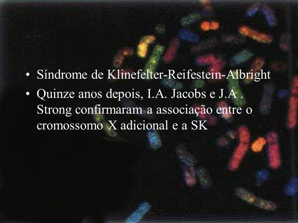 Síndrome de Klinefelter-Reifestein-Albright