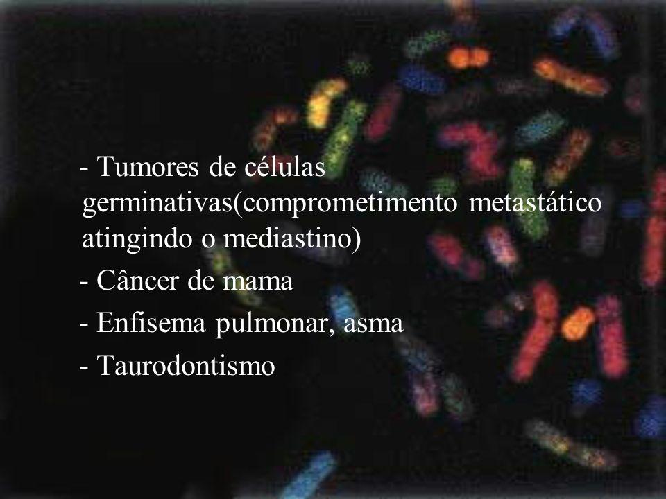 - Tumores de células germinativas(comprometimento metastático atingindo o mediastino)