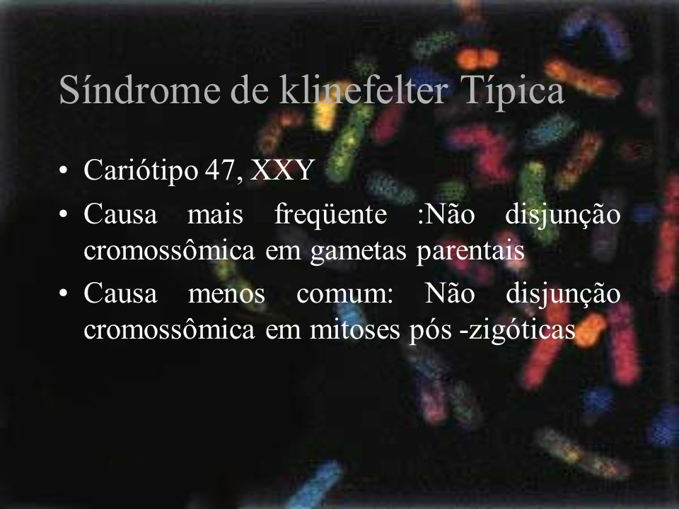 Síndrome de klinefelter Típica