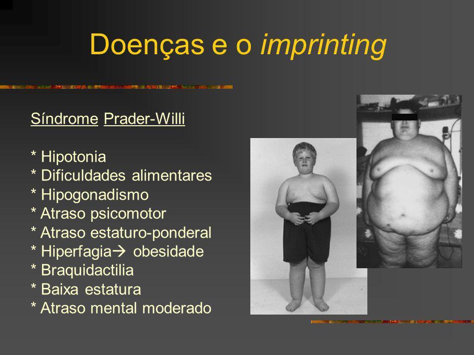 Doenças e o imprinting Síndrome Prader-Willi * Hipotonia