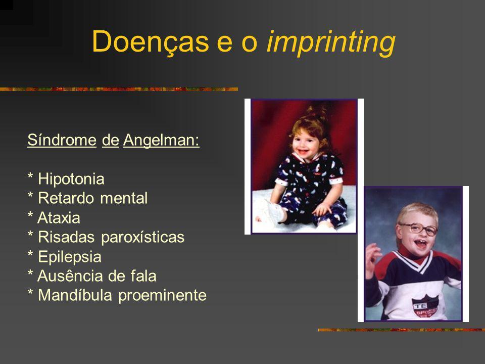 Doenças e o imprinting Síndrome de Angelman: * Hipotonia