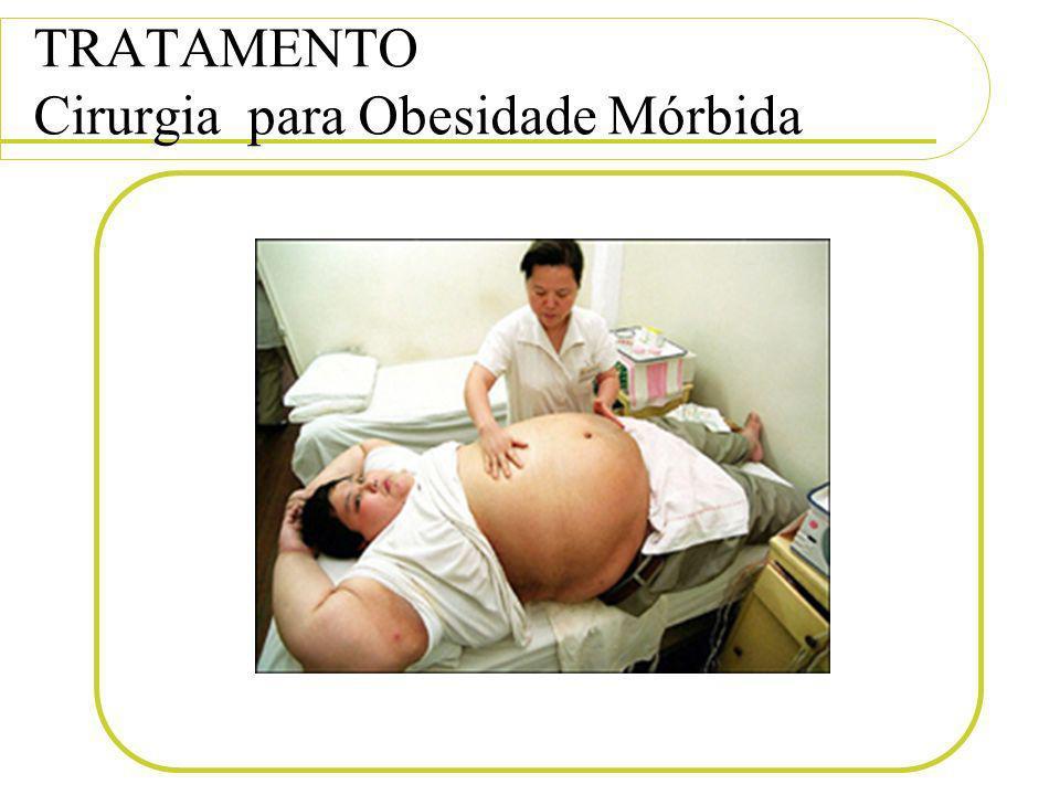 TRATAMENTO Cirurgia para Obesidade Mórbida