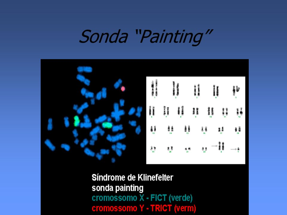 Sonda Painting