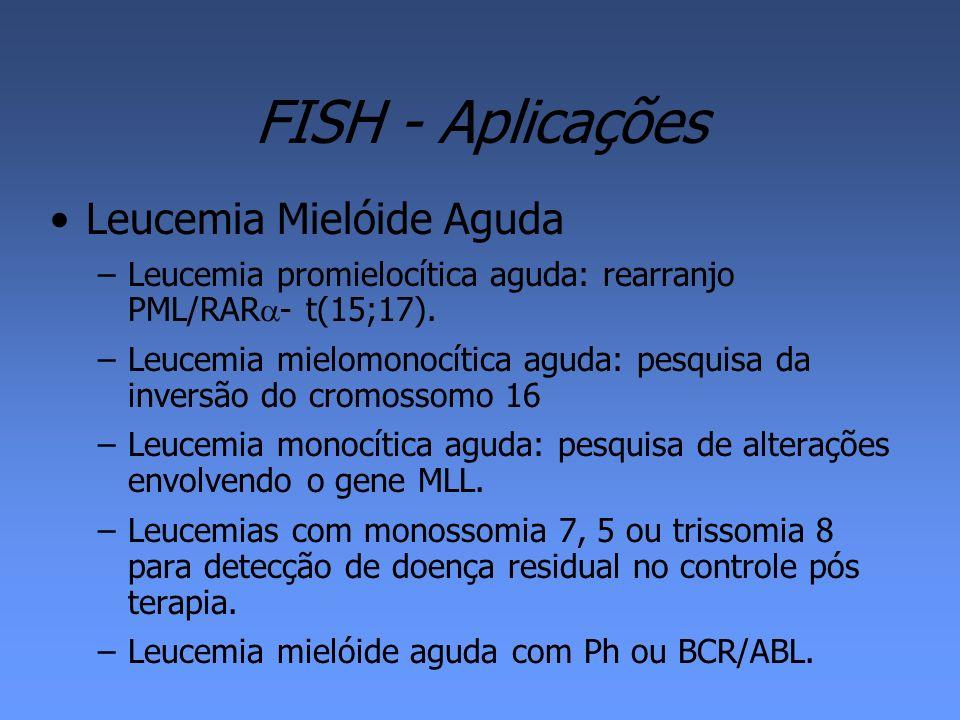 FISH - Aplicações Leucemia Mielóide Aguda