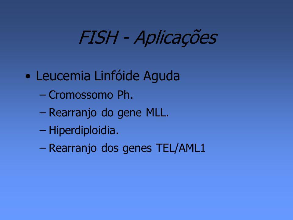 FISH - Aplicações Leucemia Linfóide Aguda Cromossomo Ph.