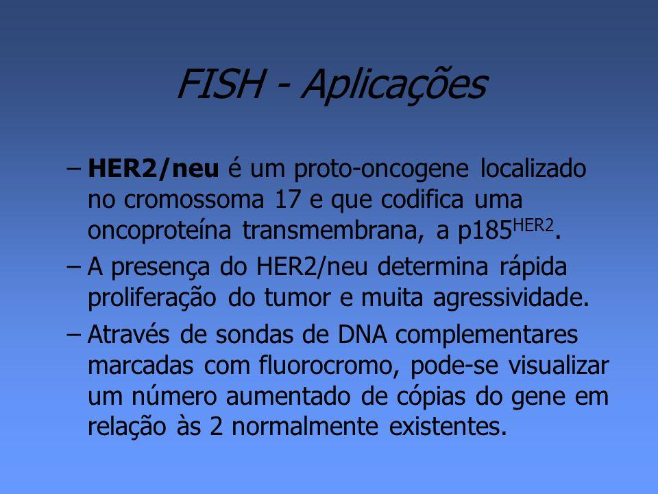 FISH - Aplicações HER2/neu é um proto-oncogene localizado no cromossoma 17 e que codifica uma oncoproteína transmembrana, a p185HER2.