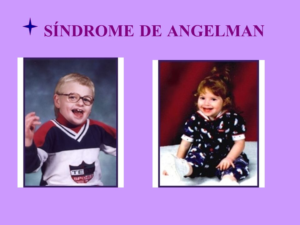 SÍNDROME DE ANGELMAN