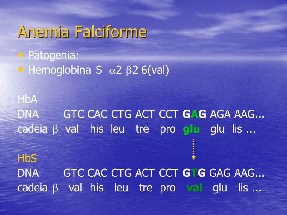 Anemia Falciforme Patogenia: Hemoglobina S 2 2 6(val) HbA