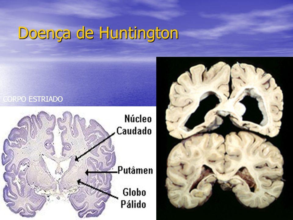 Doença de Huntington CORPO ESTRIADO