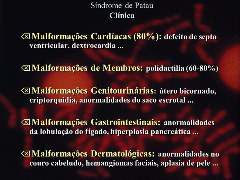 Síndrome de Patau Clínica