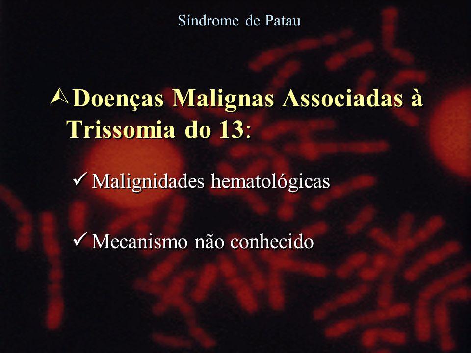 Doenças Malignas Associadas à Trissomia do 13: