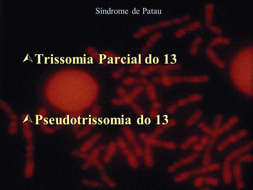 Síndrome de Patau Trissomia Parcial do 13 Pseudotrissomia do 13