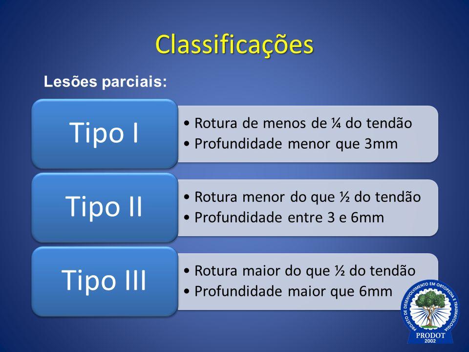 Tipo I Tipo II Tipo III Classificações Lesões parciais: