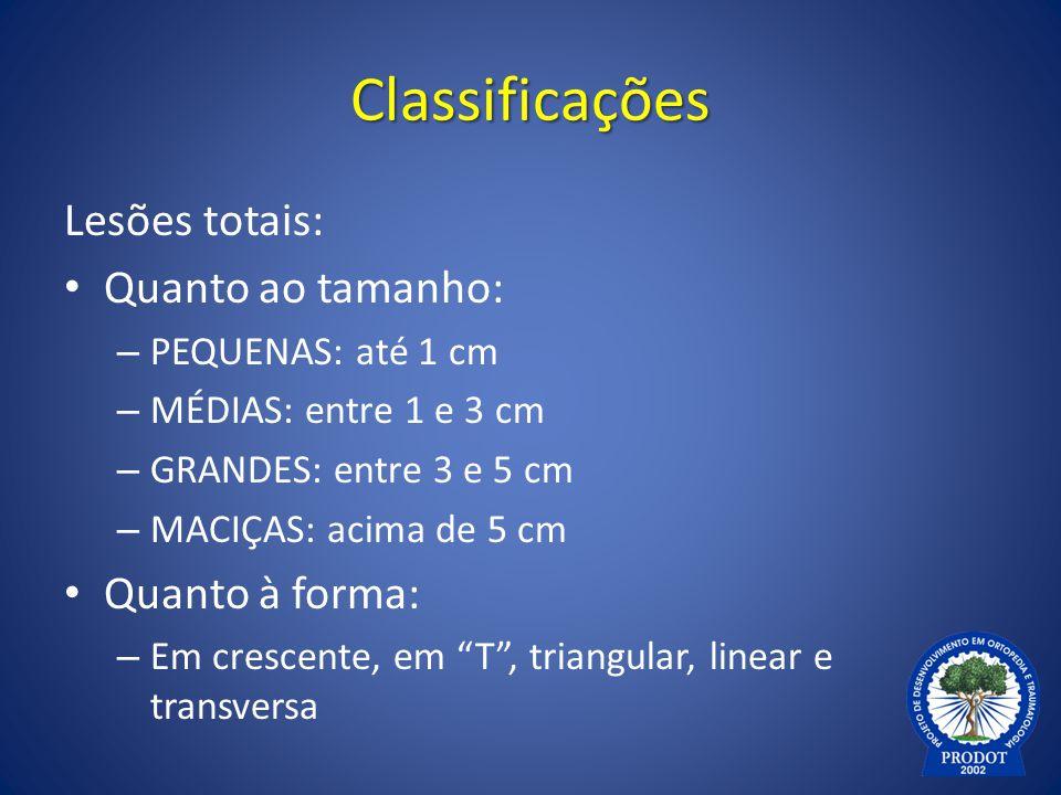Classificações Lesões totais: Quanto ao tamanho: Quanto à forma: