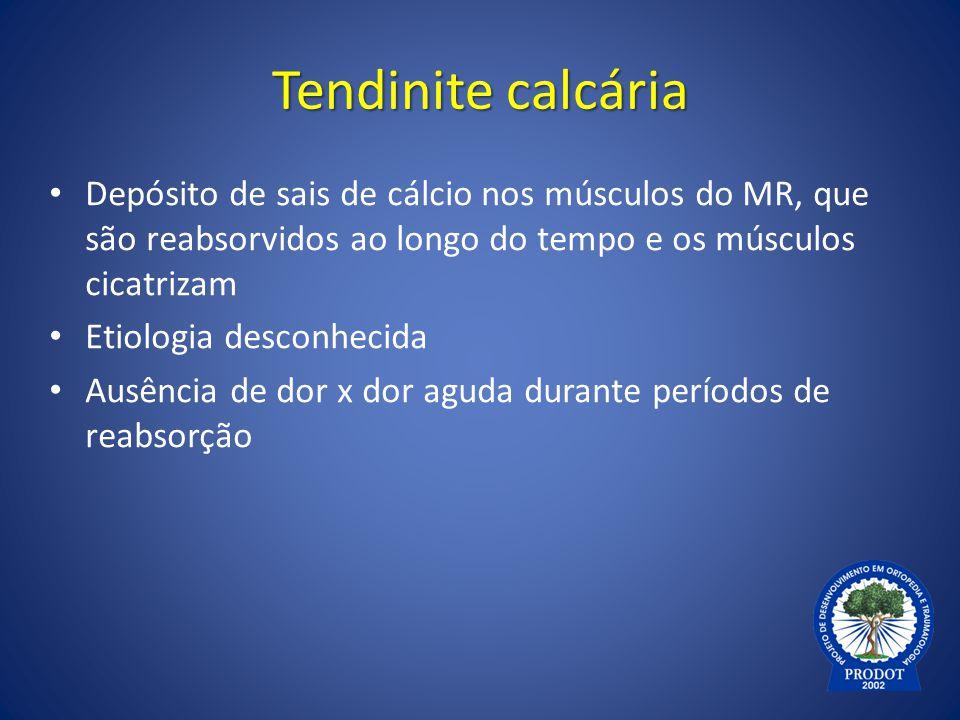 Tendinite calcária Depósito de sais de cálcio nos músculos do MR, que são reabsorvidos ao longo do tempo e os músculos cicatrizam.