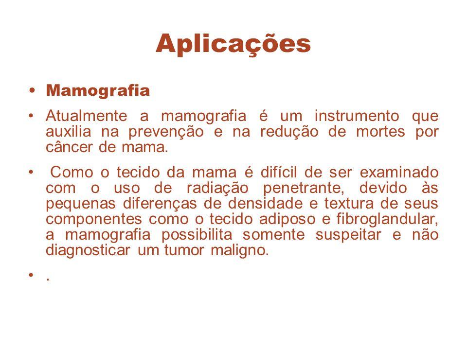 Aplicações Mamografia