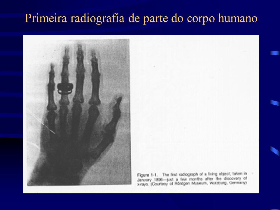 Primeira radiografia de parte do corpo humano