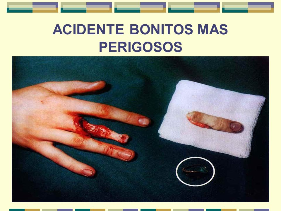 ACIDENTE BONITOS MAS PERIGOSOS