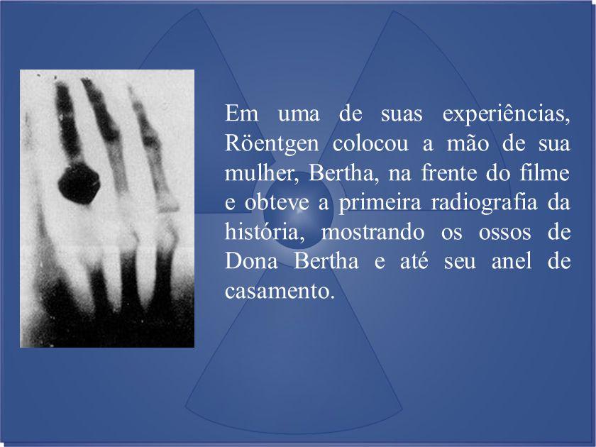 Em uma de suas experiências, Röentgen colocou a mão de sua mulher, Bertha, na frente do filme e obteve a primeira radiografia da história, mostrando os ossos de Dona Bertha e até seu anel de casamento.