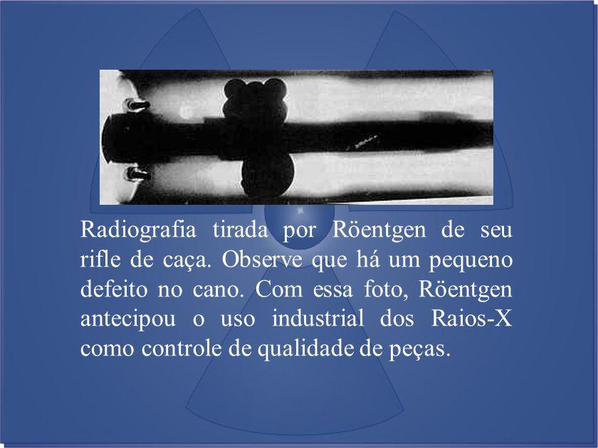 Radiografia tirada por Röentgen de seu rifle de caça
